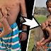 قصة الطفل الذي إستهزأوا به لأنه بثمانية أطراف | لكن ما حدث بعد 7 سنوات جعلهم يندمون!