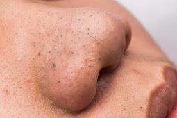 Cara Alami Menghilangkan Komedo Hitam dan Komedo Putih di Hidung Dengan Cepat