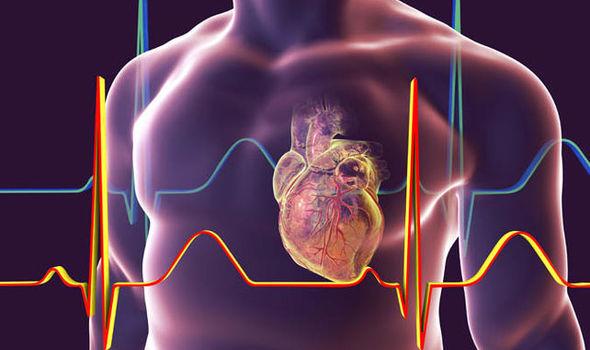 Gfacom image for the acute coronary syndrome