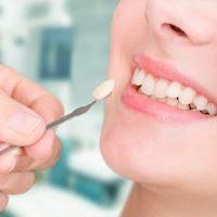قشور الاسنان تقرير شامل وحصري