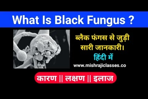 What Is Black Fungus mucormycosis