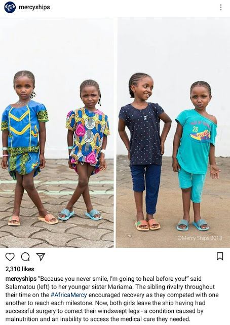 Photos of two little African sisters with severe