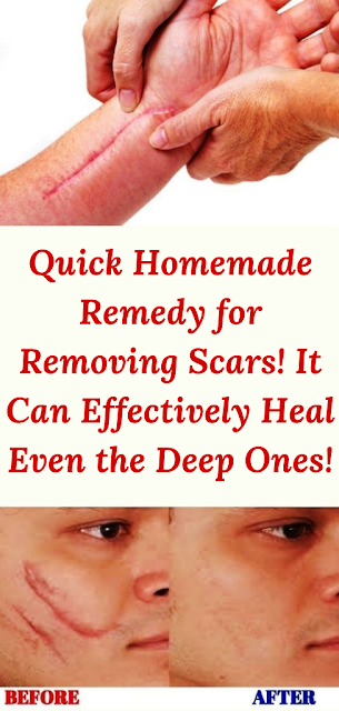 Quick Homemade Remedy for Removing Scars! It Can Effectively Heal Even the Deep Ones!