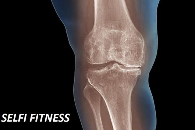 arthritis,rheumatoid arthritis,arthritis treatment,arthritis relief,arthritis pain,arthritis medicine,rheumatoid arthritis treatment,rheumatoid arthritis diet,treating rheumatoid arthritis naturally,arthritis pain relief,dog arthritis remedy,arthritis in leg,vitiligo natural cure,arthritis (disease or medical condition),arthritis treatment for cats,arthritis symptoms,natural ingredients,arthritis treatment for dogs