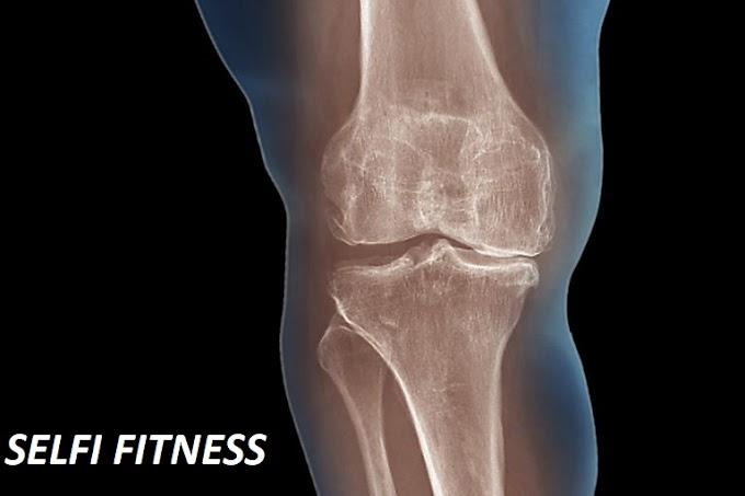 Arthritis - the most important natural remedies globally