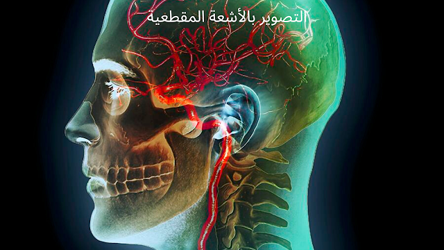 ما هو التصوير بالأشعة المقطعية   (CT)  و قدرته علي تشخيص فيروس كرونا