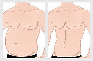 liposuction-before-after-stomach
