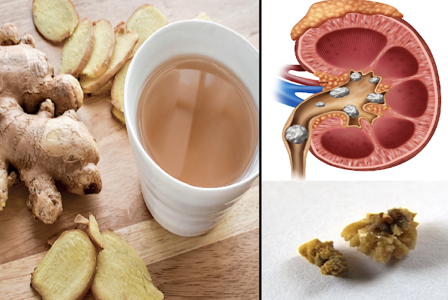 Ginger Tea: Revealed Dissolves Kidney Stones, Cleanses Liver And Reduce Joint Pain