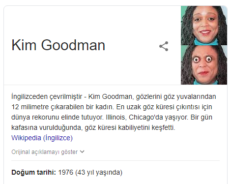 499: Göz Pörtletme Rekortmeni Kim Goodman