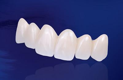 răng sứ đẹp
