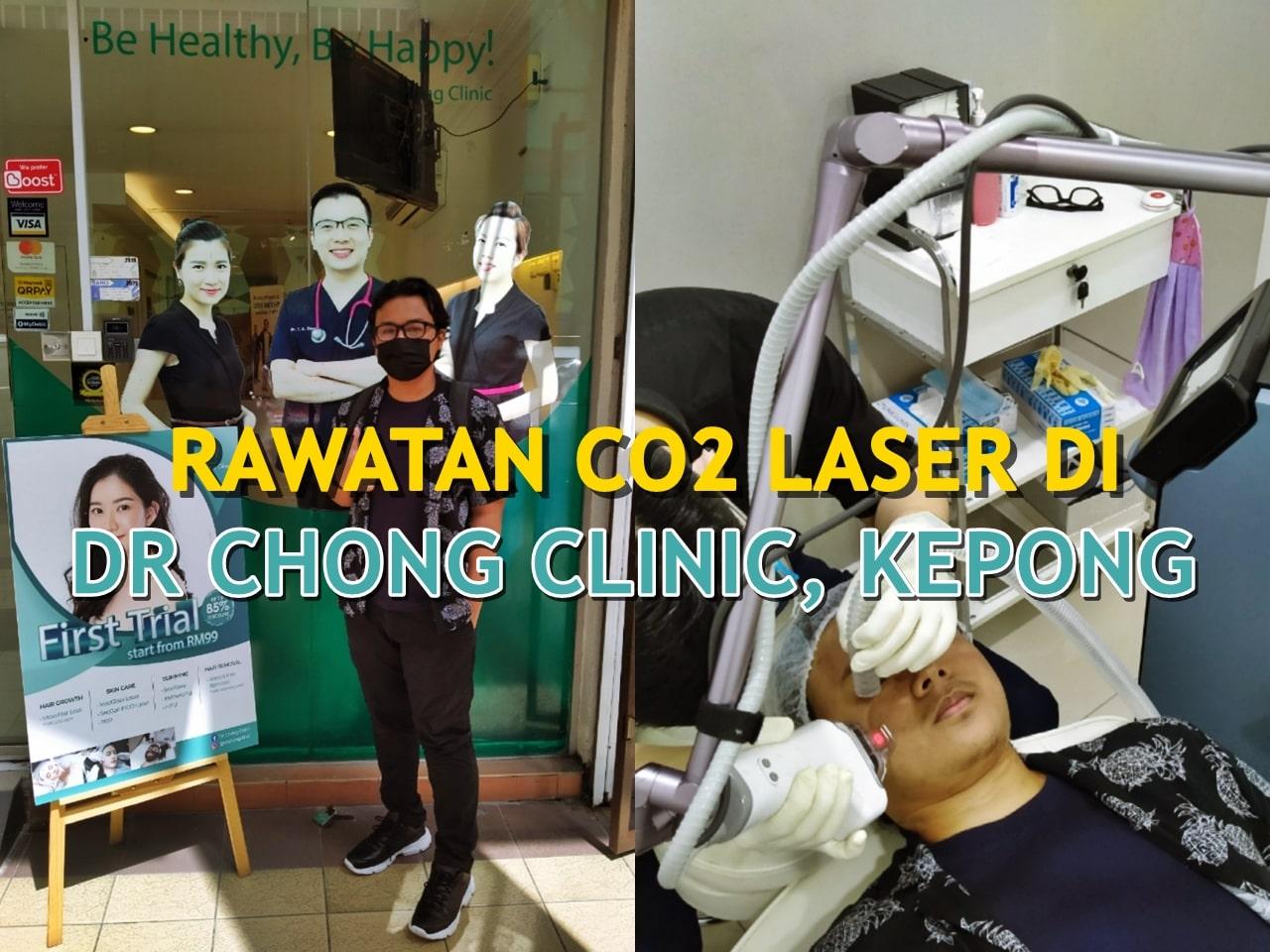 Pengalaman Buat Rawatan Fractional CO2 Laser di Dr Chong Clinic Kepong