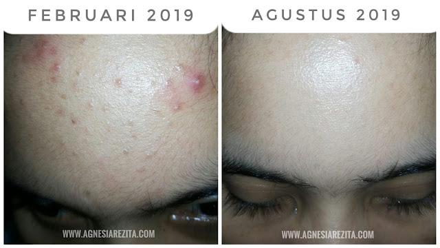 ACNE STORY – Update Pemakaian ElsheSkin Acne Series Selama 6 Bulan (Musnah Jerawat Semuka)