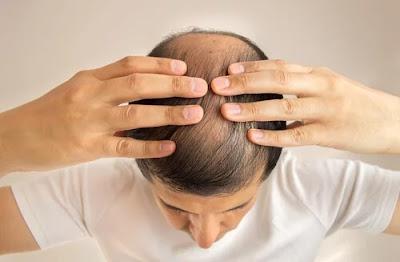 raisons pour lesquelles les cheveux peuvent tomber