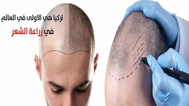 اهم تقنيات زراعة الشعر في تركيا