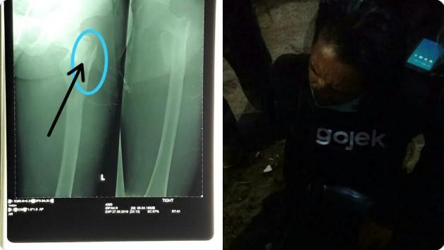 Terlindas Mobil Taktis Polisi yang Bubarkan Massa, Driver Ojol Alami Patah Tulang