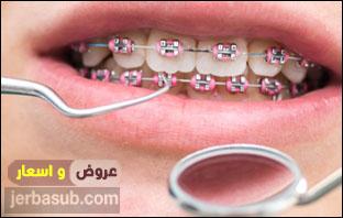 اسعار تقويم الاسنان في الامارات