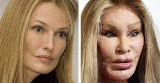 Famous People Who Are Unrecognizable Today