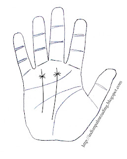 Star On Fate Line And Star On Sun Line Palmistry