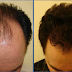 EVERYONE SPEAKS ABOUT THIS NATURAL HAIR GROWTH SERUM: THE RESULTS ARE VISIBLE AFTER ONLY FEW APPLICATIONS!