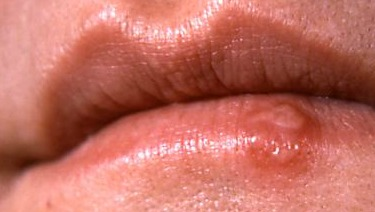 Cold Sores in Children: About the Herpes Simplex Virus