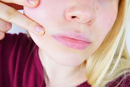 5 Tips menghilangkan jerawat berdasarkan jenis kulit