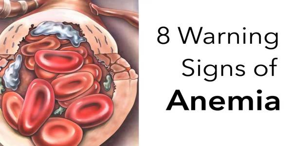 Signs of Anemia
