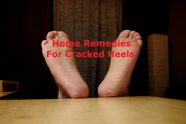 Home Remedies For Cracked Heels Treatment in Bengali
