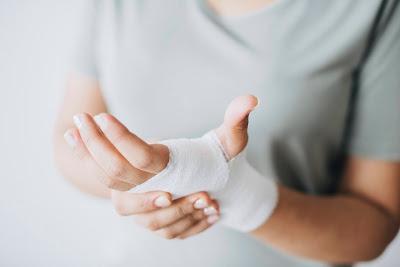 Mujer con lesión en la mano