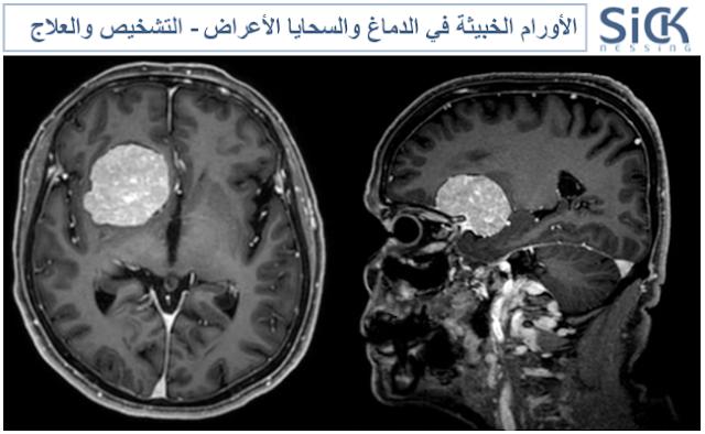 الأورام الخبيثة في الدماغ والسحايا الأعراض - التشخيص والعلاج