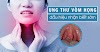 Ung thư vòm họng: Dấu hiệu, nguyên nhân, chẩn đoán, điều trị