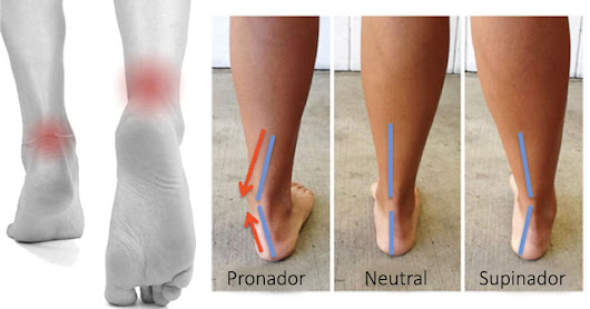 Causes of Ankle Pronation in Kids