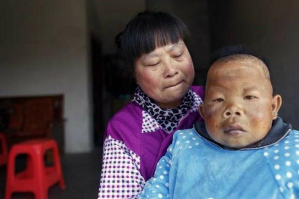 Pria 30 Tahun ini Idap Penyakit Langka Sampai Fisiknya-Pun Seperti Masih Balit
