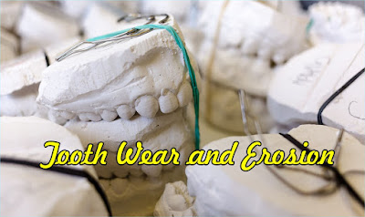 Tooth Wear and Erosion