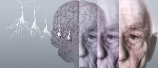 Lítio estabiliza memória de idosos com Alzheimer