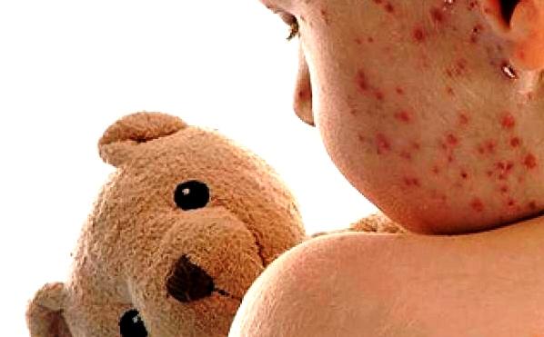 vacina-contra-o-sarampo