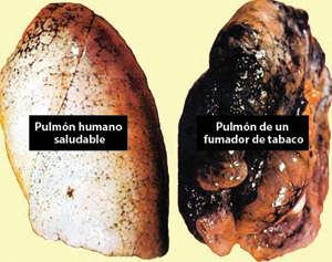 Foto de dos pulmones. Uno es saludable y el otro muestra los efectos de fumar tabaco.