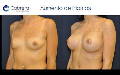 aumento mamario anatomicos