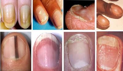 andariki-ayurvedam-nails-health