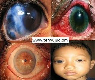 Mata Glaukoma