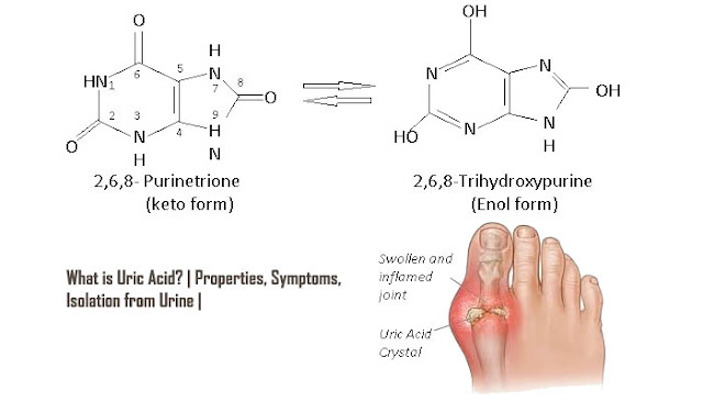 What is uric Acid