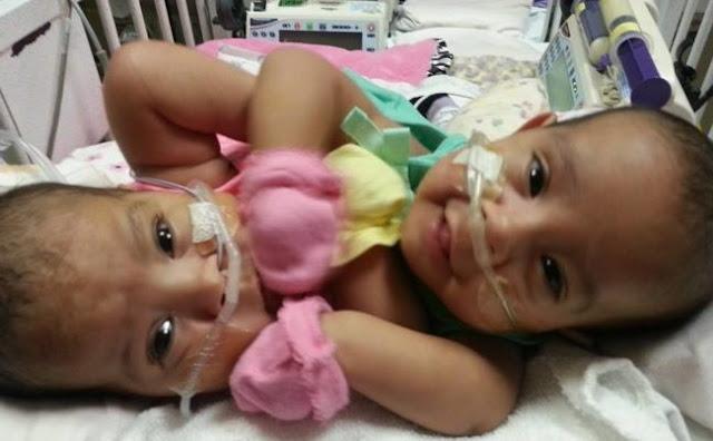 Bayi Kembar Siam, Dokter Terkejut Begini Kondisinya sekarang...