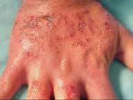 obat eksim pada pada kaki dan tangan yang di jual di apotik