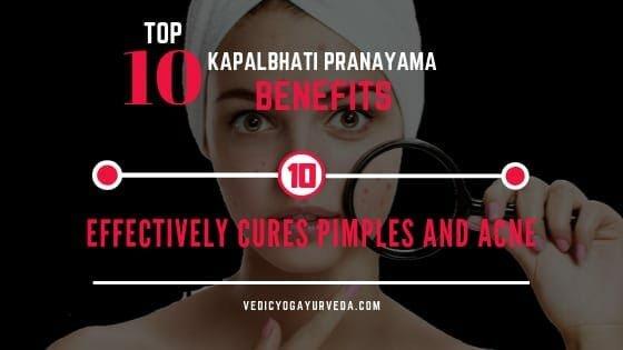 शीर्ष 10 कपालभात प्राणायाम फायदे- १०.पिंपल्स मुरुम आणि मुरुमांवर प्रभावीपणे उपचार करतात