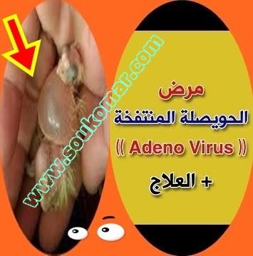 مرض الحويصلة المتفخه عند الطيور(Adeno Virus)
