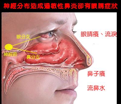 眼睛與鼻子有著共同神經節,使得眼鼻都有癢的感覺