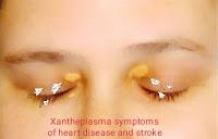 https://www.economicfinancialpoliticalandhealth.com/2019/06/xantheplasma-symptoms-of-heart-disease.html