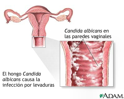 Infecciones vaginales de la levadura sin descarga