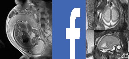 شركة فيسبوك تستخدم الذكاء الاصطناعي لإنتاج أشعة رنين مغناطيسي