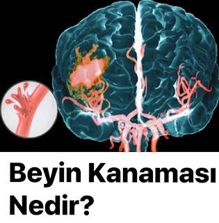 Beyin Kanaması Nedir? Beyin Kanaması Hakkında Bilinmesi Gerekenler?