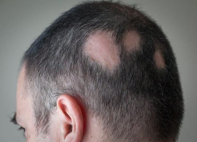 Thuốc trị ung thư ở Israel điêù trị luôn chứng hói đầu tự miễn